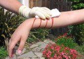 Правила помощи при венозных кровотечениях