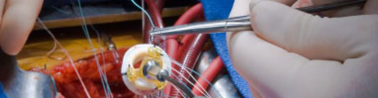 Виды ангиопластики сосудов и артерий