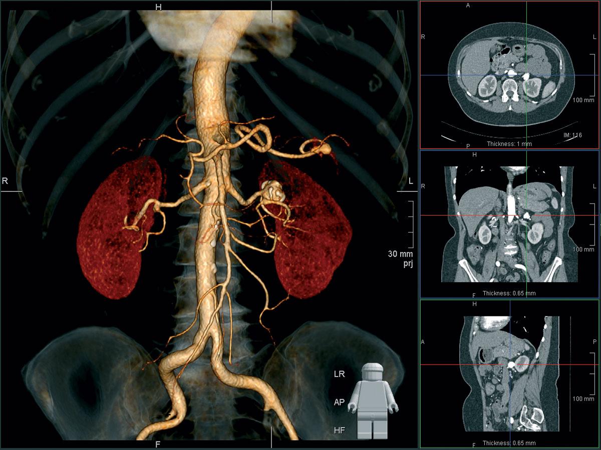 Специфика при исследовании разных органов
