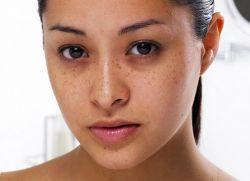 Гематомы на лице