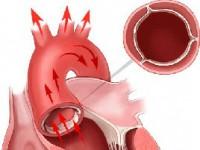 Уплотнение стенок аорты створок аортального клапана