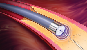 Ангиопластика при помощи лазера