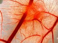 Геморрагический диатез кровеносной системы