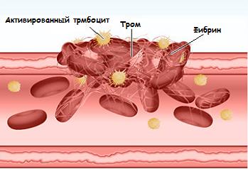 Роль гемостаза