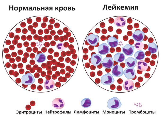 Базовые факторы лейкопении