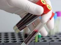 Определение СРБ в анализе крови