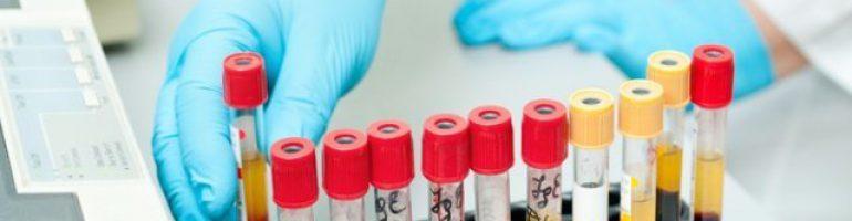 Анализ крови на КФК может спасти жизнь