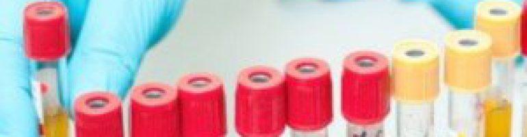 Комплексная биохимия анализа крови