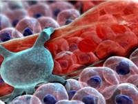 Виды и лечение системных васкулитов