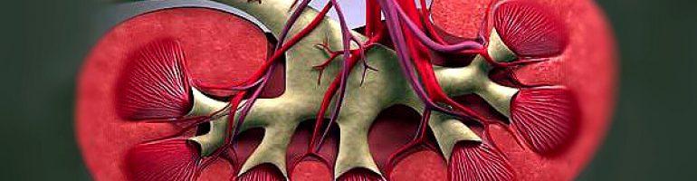 Синдром почечной артериальной гипертензии