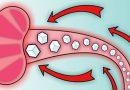 Важность показателя глюкозы в анализе крови