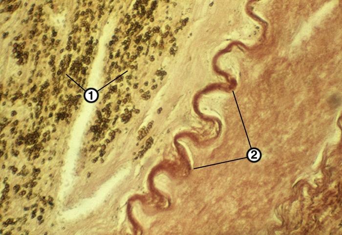 Микропрепарат стенки аорты при атеросклерозе