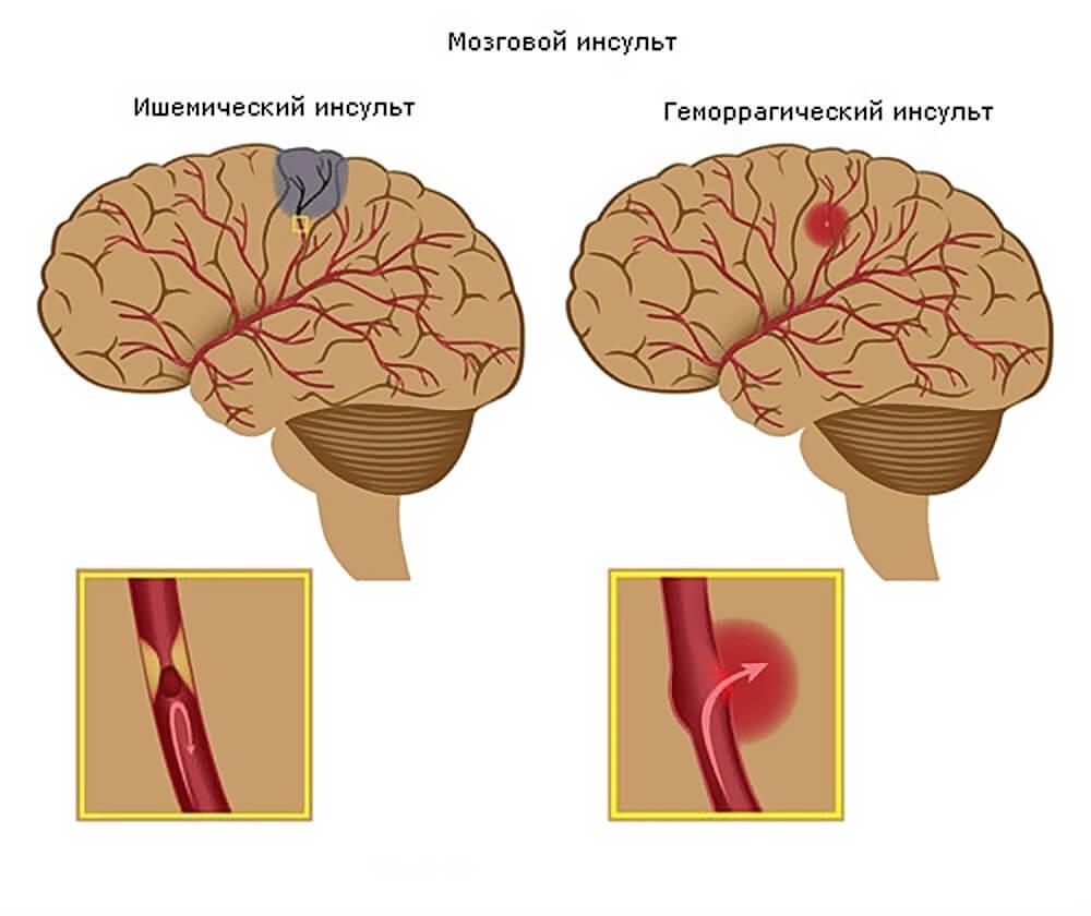 В головном мозге