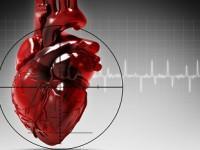 Микроинфаркт у мужчин и женщин
