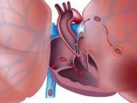 Что такое инфаркт легкого
