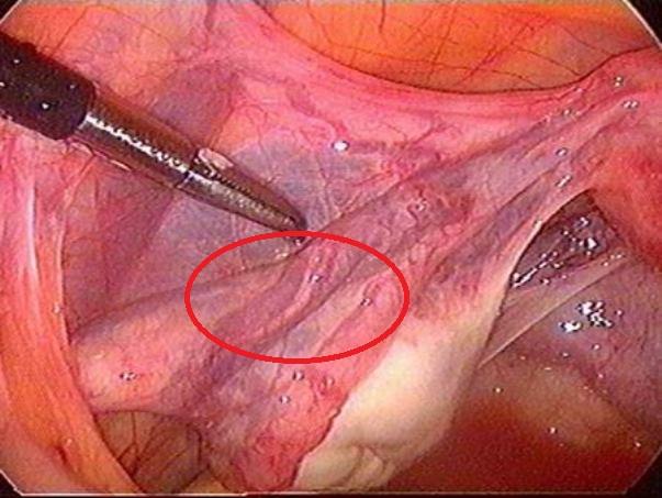 расширение вен малого таза при беременности