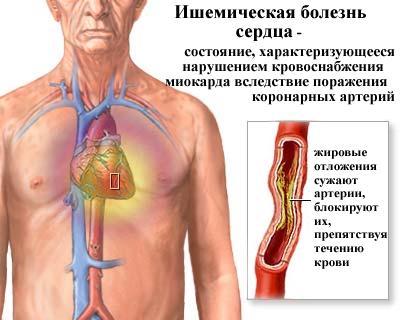 Общие представления о заболевании