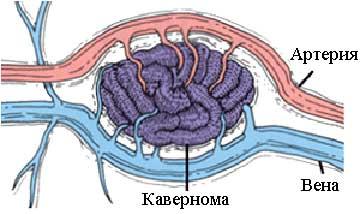 Разновидности ангиомы