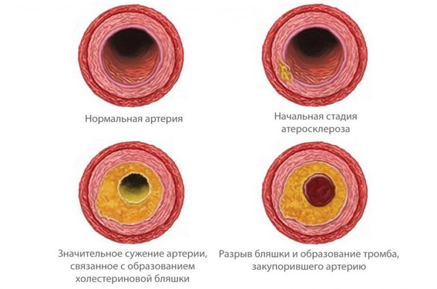 Холестерин в капиллярной крови
