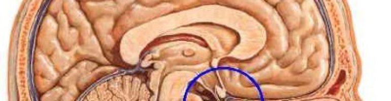 Что собой представляет ангиома головного мозга