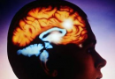 Арахноидит оболочек головного мозга