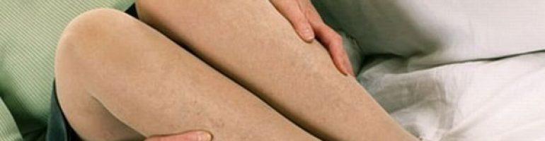 Как выбрать компрессионное белье при варикозе