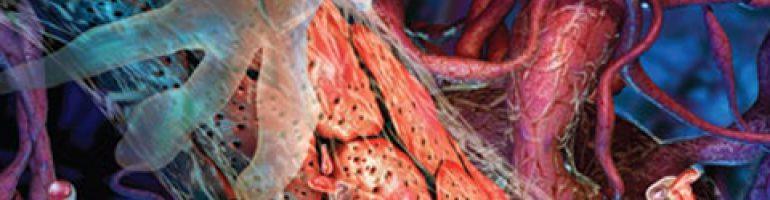 Неспецифический аортоартериит (синдром Такаясу)