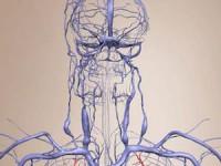 Что такое венозная дисгемия