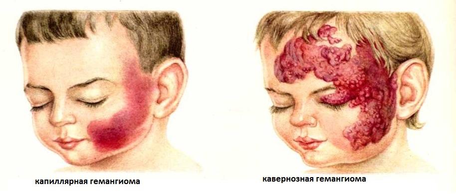 Разновидности капиллярных гемангиом