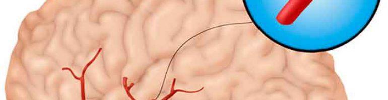 Атеросклероз и сужение сосудов головного мозга