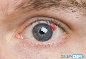Сетчатки глаз