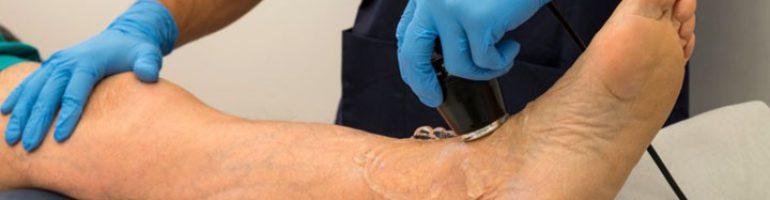 Ультразвуковая доплерография сосудов ног (УЗДГ)