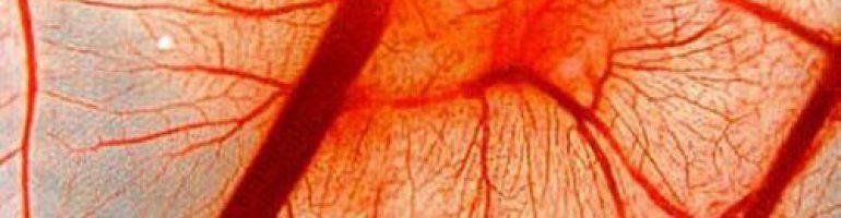 Геморрагический васкулит (болезнь Шенлейна-Геноха)