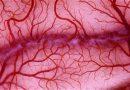 Воспаление сосудов (васкулит)
