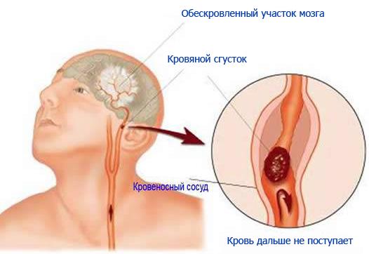 Сосуды головы