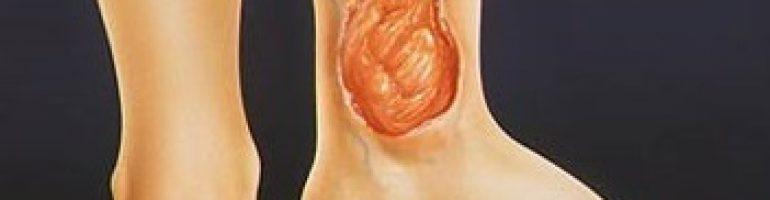 Почему возникает трофическая язва на ноге