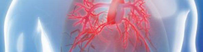 Гипертензия легочной артерии