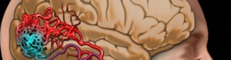 Мальфорация сосудов спины и головы