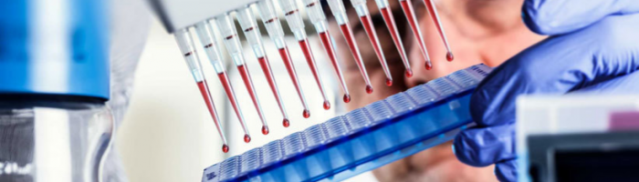 Проверка крови на гамма-глобулины