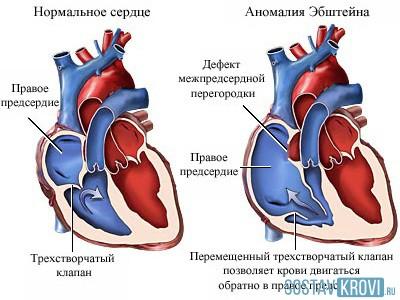 Работа сердечной мышцы