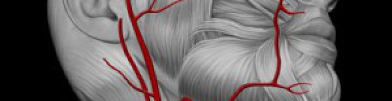 Аневризма сонной артерии (шеи)