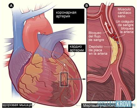 Постинфарктный
