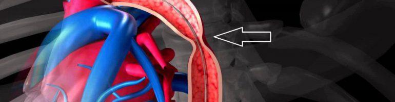Что такое коарктация аорты
