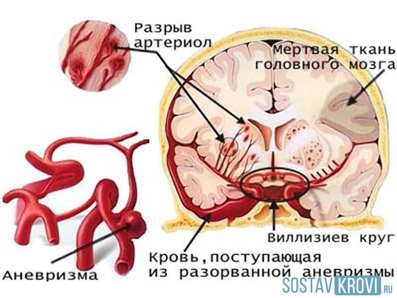Разрыв аневризмы