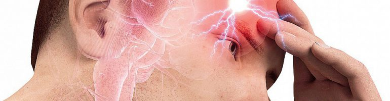 Аневризма сосудов мозга головы