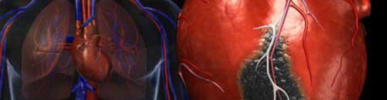 Постинфарктный кардиосклероз сердца