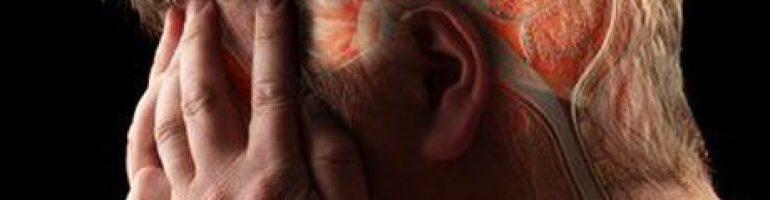 Что такое геморрагический инсульт головного мозга