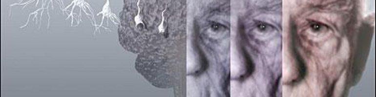 Деменция (слабоумие)