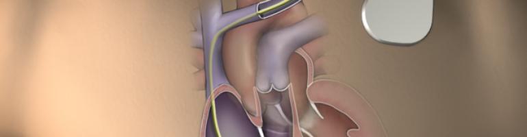 Установка кардиостимулятора сердца (ЭКС)