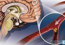 Виды патологической извитости сосудов